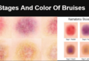 Stages And Color Of Bruises